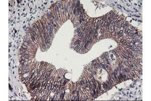 image for anti-Arachidonate 15-Lipoxygenase (ALOX15) antibody (ABIN1496359)