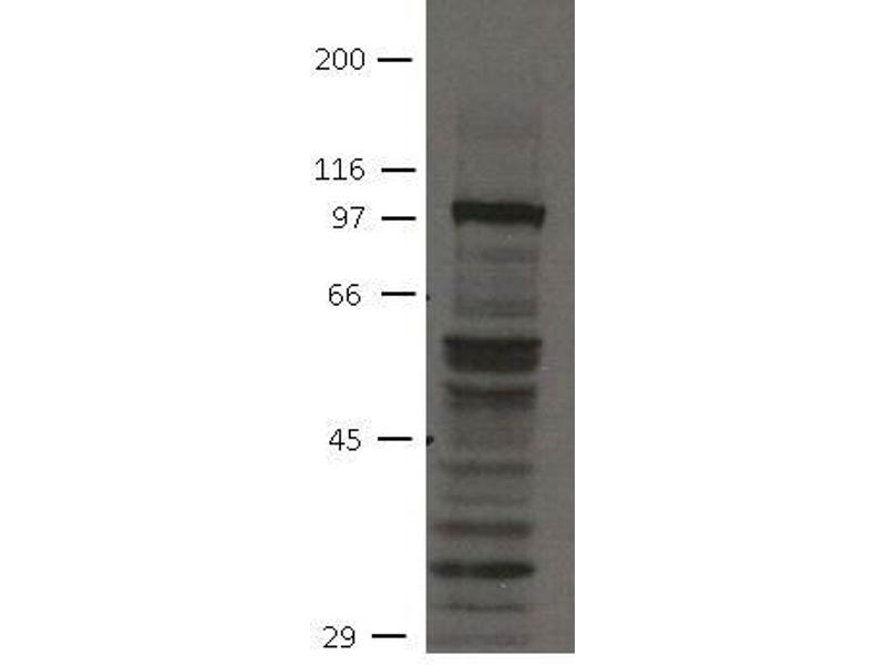 image for anti-Fibroblast Growth Factor Receptor 4 (FGFR4) (Cytoplasmic Domain) antibody (ABIN1169685)