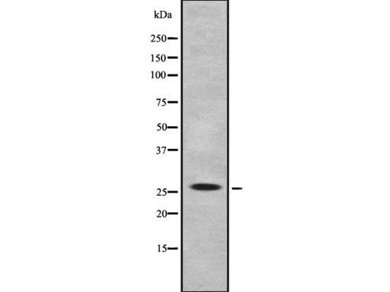 Image no. 2 for anti-Interleukin 32 (IL32) antibody (ABIN6262527)