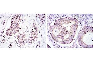 Immunohistochemistry (IHC) image for anti-Heat Shock 60kDa Protein 1 (Chaperonin) (HSPD1) antibody (ABIN969200)