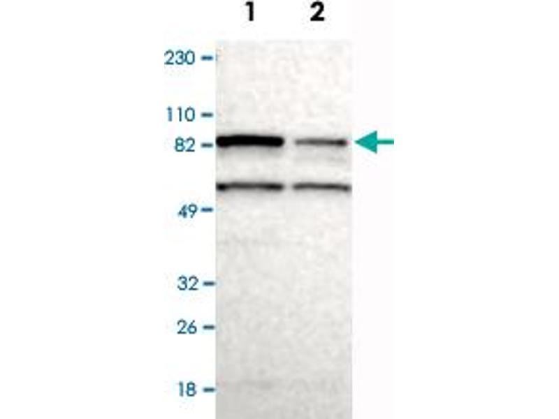 Western Blotting (WB) image for anti-Ribosomal Protein S6 Kinase, 90kDa, Polypeptide 6 (RPS6KA6) antibody (ABIN5587225)