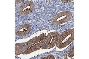 Image no. 1 for anti-Carboxypeptidase M (CPM) antibody (ABIN5575890)