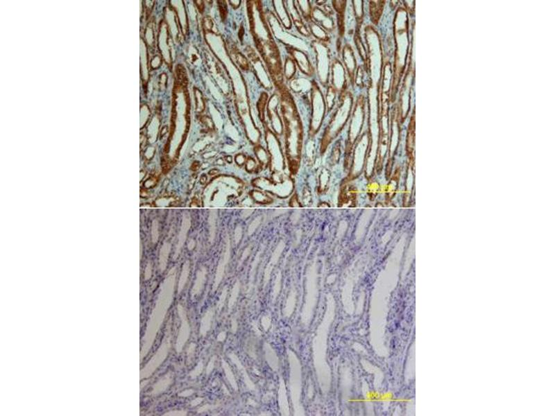 Immunohistochemistry (IHC) image for anti-Catenin (Cadherin-Associated Protein), beta 1, 88kDa (CTNNB1) (AA 2-781) antibody (ABIN4899451)