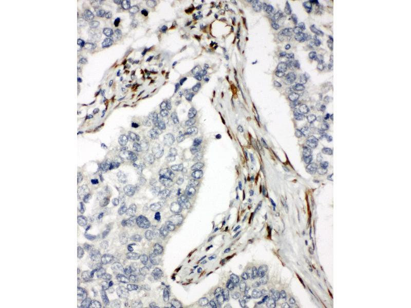Immunohistochemistry (IHC) image for anti-Tumor Necrosis Factor Receptor Superfamily, Member 10b (TNFRSF10B) (AA 333-348), (C-Term) antibody (ABIN3044205)