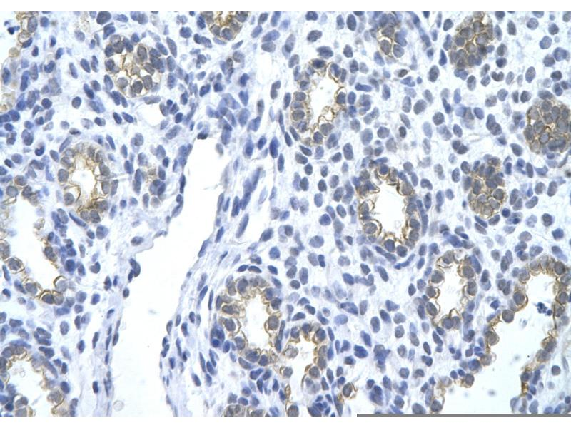 Immunohistochemistry (Paraffin-embedded Sections) (IHC (p)) image for anti-KRT18 antibody (Keratin 18) (N-Term) (ABIN2778669)