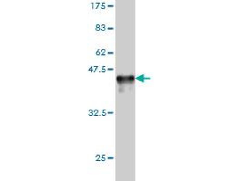 Western Blotting (WB) image for anti-RAD23 Homolog A (S. Cerevisiae) (RAD23A) (AA 151-250) antibody (ABIN393680)