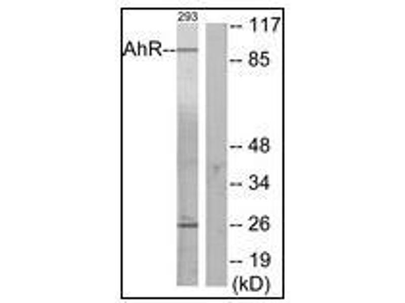Western Blotting (WB) image for anti-Aryl Hydrocarbon Receptor (AHR) (N-Term) antibody (ABIN5611475)