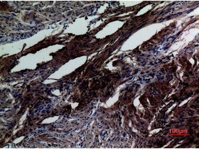 Immunohistochemistry (IHC) image for anti-SMAD, Mothers Against DPP Homolog 5 (SMAD5) (Internal Region) antibody (ABIN3187646)