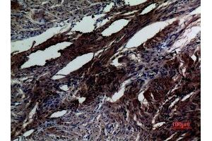 Image no. 2 for anti-SMAD, Mothers Against DPP Homolog 5 (SMAD5) (Internal Region) antibody (ABIN3187646)