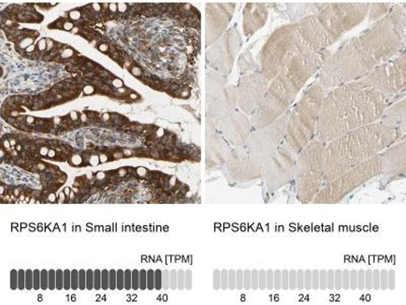 Immunohistochemistry (Paraffin-embedded Sections) (IHC (p)) image for anti-Ribosomal Protein S6 Kinase, 90kDa, Polypeptide 1 (RPS6KA1) antibody (ABIN4351278)