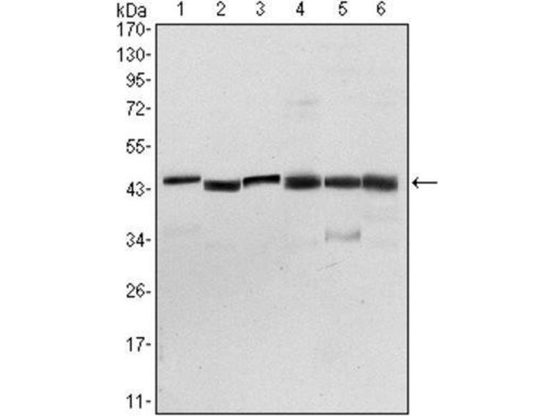 Western Blotting (WB) image for anti-3-phosphoinositide Dependent Protein Kinase-1 (PDPK1) antibody (ABIN1844865)