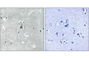 Immunohistochemistry (IHC) image for anti-BAX antibody (BCL2-Associated X Protein) (pSer184) (ABIN1532125)