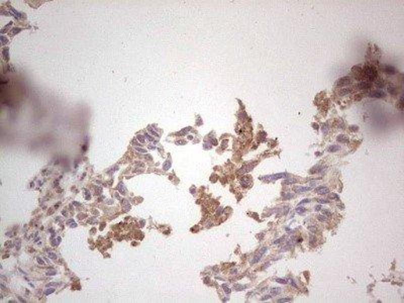 Immunohistochemistry (IHC) image for anti-C-Ros Oncogene 1 , Receptor tyrosine Kinase (ROS1) antibody (ABIN4350970)