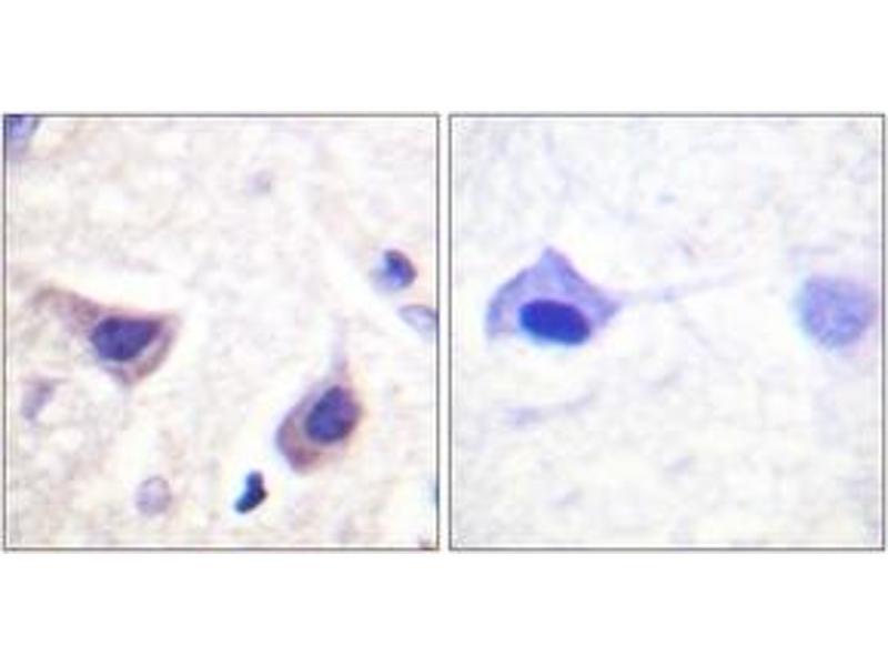 Immunohistochemistry (IHC) image for anti-Tyrosine-Protein Kinase JAK3 (JAK3) (AA 751-800) antibody (ABIN1532701)