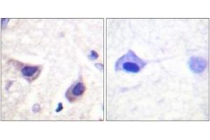 Immunohistochemistry (IHC) image for anti-JAK3 antibody (Tyrosine-Protein Kinase JAK3) (ABIN1532701)