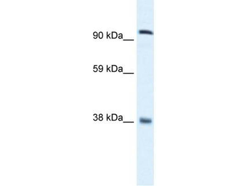 Western Blotting (WB) image for anti-MDS1 and EVI1 Complex Locus (MECOM) (C-Term) antibody (ABIN2777403)