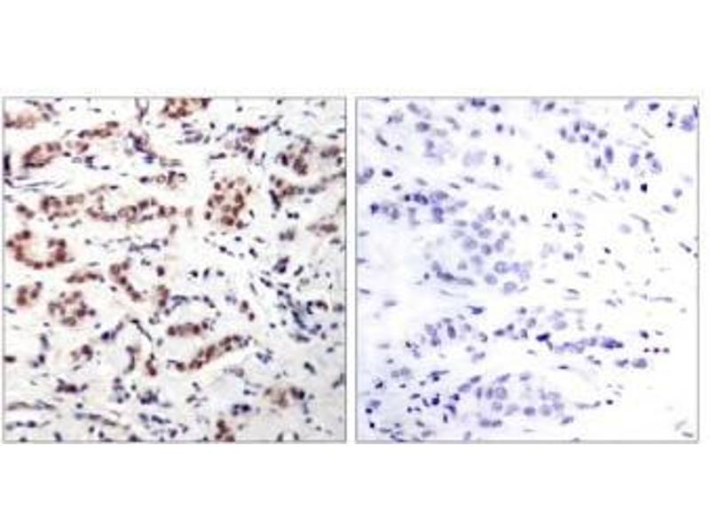image for anti-STAT5A antibody (Signal Transducer and Activator of Transcription 5A) (pTyr694) (ABIN196697)