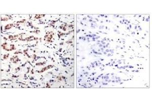 image for anti-STAT5A antibody (Signal Transducer and Activator of Transcription 5A) (pTyr694) (ABIN196696)