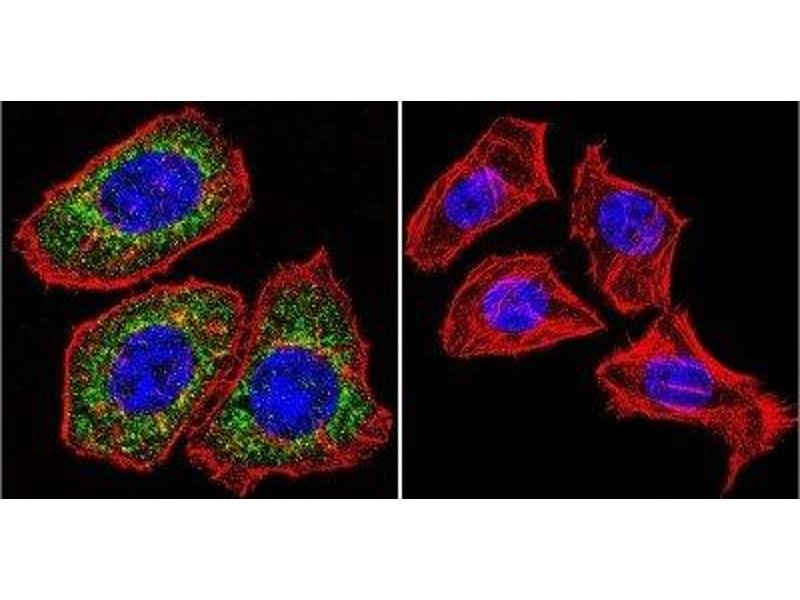Image no. 1 for anti-Nuclear Receptor Subfamily 3, Group C, Member 1 (Glucocorticoid Receptor) (NR3C1) antibody (ABIN268501)