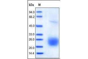 Image no. 1 for Cytotoxic T-Lymphocyte-Associated Protein 4 (CTLA4) (AA 37-162) (Active) protein (His tag) (ABIN2487344)