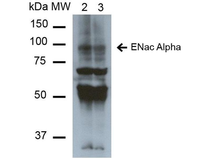 Image no. 2 for anti-Sodium Channel, Nonvoltage-Gated 1 alpha (SCNN1A) (AA 46-68) antibody (Alkaline Phosphatase (AP)) (ABIN5066866)