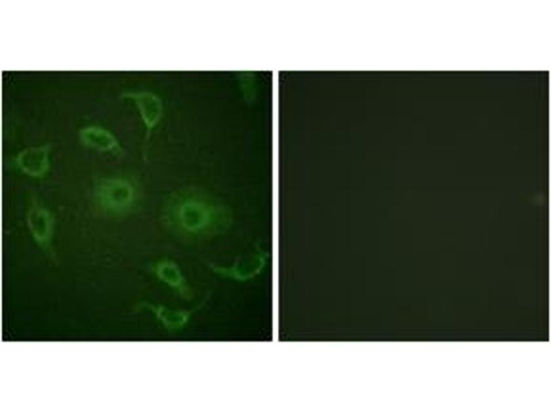 Immunofluorescence (IF) image for anti-IFNAR1 antibody (Interferon (Alpha, beta and Omega) Receptor 1) (ABIN1532631)