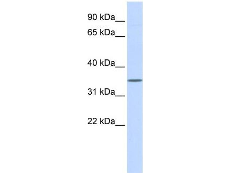 Western Blotting (WB) image for anti-WNT1 antibody (Wingless-Type MMTV Integration Site Family, Member 1) (Middle Region) (ABIN2779465)