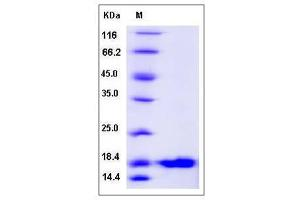 Image no. 1 for Ubiquitin-Conjugating Enzyme E2L 6 (UBE2L6) (AA 1-153) protein (His tag) (ABIN2005293)