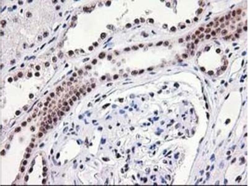Immunohistochemistry (Paraffin-embedded Sections) (IHC (p)) image for anti-Monoglyceride Lipase (MGLL) antibody (ABIN4335290)