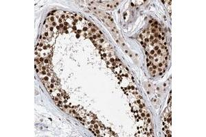 Image no. 2 for anti-Zinc Finger Protein 470 (ZNF470) antibody (ABIN5591370)