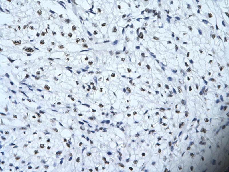 Immunohistochemistry (IHC) image for anti-Homeodomain Interacting Protein Kinase 2 (HIPK2) (Middle Region) antibody (ABIN2779735)