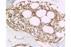 Immunohistochemistry (Paraffin-embedded Sections) (IHC (p)) image for anti-Tumor Necrosis Factor (Ligand) Superfamily, Member 11 (TNFSF11) (AA 235-280) antibody (ABIN668556)