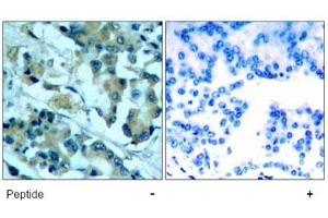 Image no. 1 for anti-Mitogen-Activated Protein Kinase Kinase 1 (MAP2K1) (Ser217) antibody (ABIN197430)