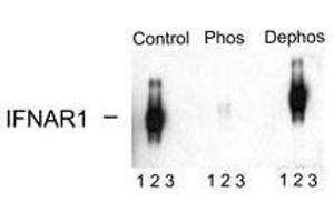 Western Blotting (WB) image for anti-IFNAR1 antibody (Interferon (Alpha, beta and Omega) Receptor 1) (pSer535) (ABIN1582221)