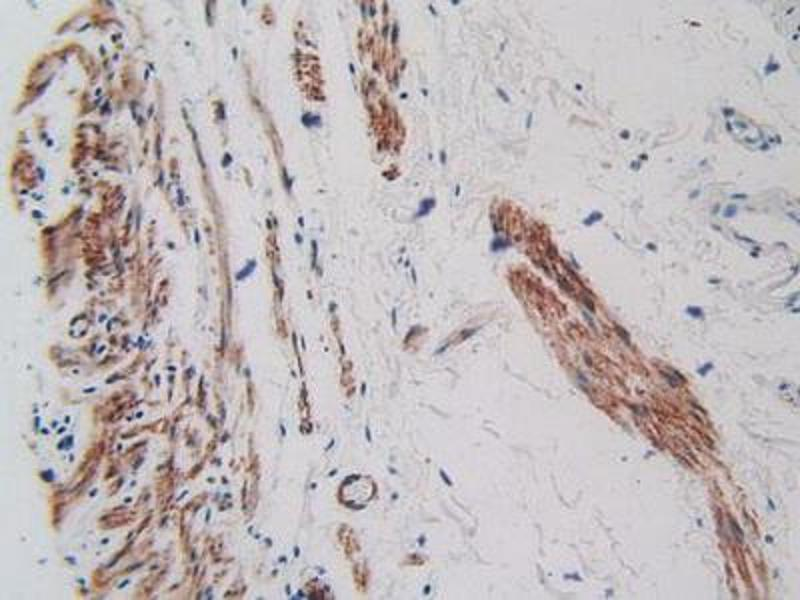 Immunohistochemistry (Paraffin-embedded Sections) (IHC (p)) image for anti-Kinase insert Domain Receptor (A Type III Receptor tyrosine Kinase) (KDR) (AA 46-320) antibody (ABIN2905486)