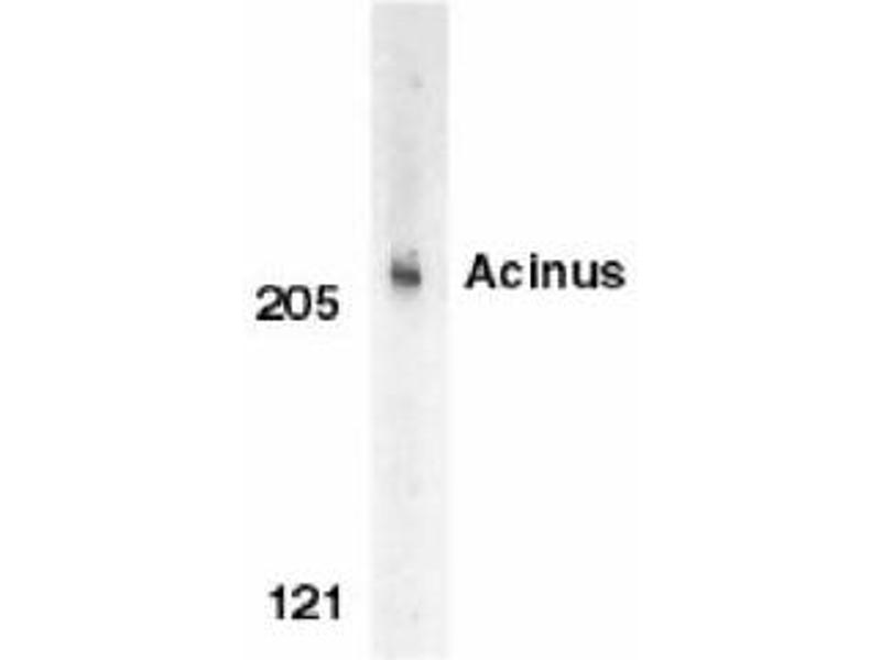 Image no. 1 for anti-ACIN1 antibody (Apoptotic Chromatin Condensation Inducer 1) (C-Term) (ABIN319028)