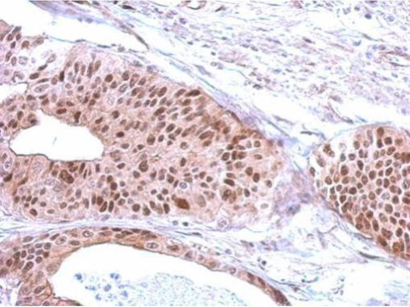 Immunohistochemistry (IHC) image for anti-Replication Factor C (Activator 1) 3, 38kDa (RFC3) (Center) antibody (ABIN2855682)