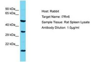 Image no. 1 for anti-Chromosome 11 Open Reading Frame 73 (C11orf73) (AA 37-86) antibody (ABIN6750374)