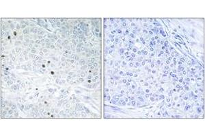 Image no. 1 for anti-Tumor Protein P53 Inducible Nuclear Protein 2 (TP53INP2) (AA 1-50) antibody (ABIN1533994)
