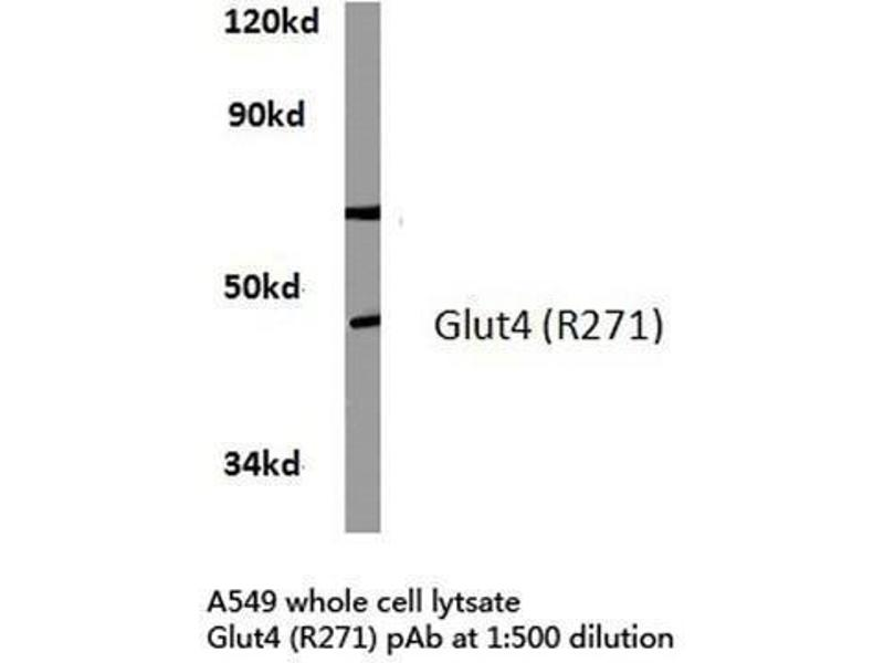 Western Blotting (WB) image for anti-Solute Carrier Family 2 (Facilitated Glucose Transporter), Member 4 (SLC2A4) antibody (ABIN4314630)