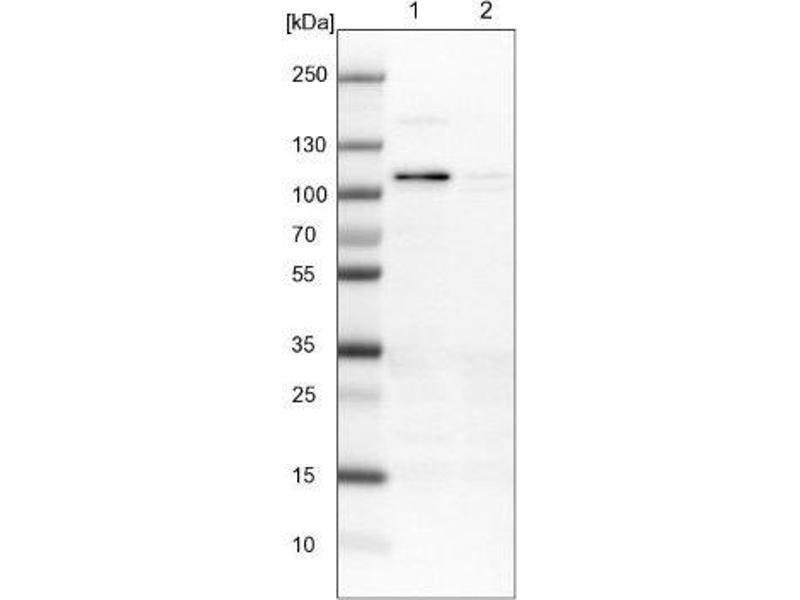 Western Blotting (WB) image for anti-RAS Protein Activator Like 2 (RASAL2) antibody (ABIN4349402)