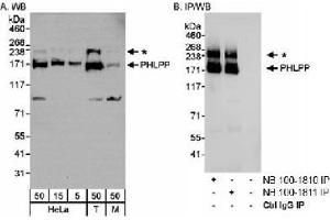 Western Blotting (WB) image for anti-PH Domain and Leucine Rich Repeat Protein Phosphatase 1 (PHLPP1) (C-Term) antibody (ABIN151320)