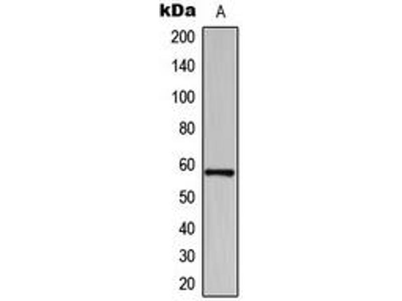 Western Blotting (WB) image for anti-BAI1-Associated Protein 2-Like-1 (BAIAP2L1) (Center) antibody (ABIN2705567)