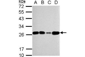 Western Blotting (WB) image for anti-Transcription Factor A, Mitochondrial (TFAM) (Center) antibody (ABIN4336024)