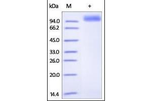 Image no. 1 for Receptor tyrosine-protein kinase erbB-2 (ErbB2/Her2) (AA 23-652) (Active) protein (His tag) (ABIN2181214)