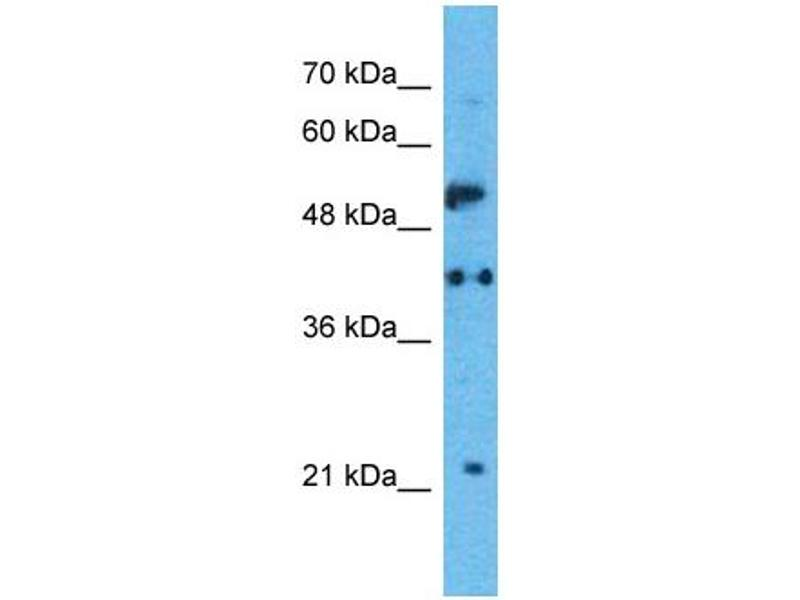 Western Blotting (WB) image for anti-Serotonin Receptor 1A antibody (HTR1A) (N-Term) (ABIN2792271)