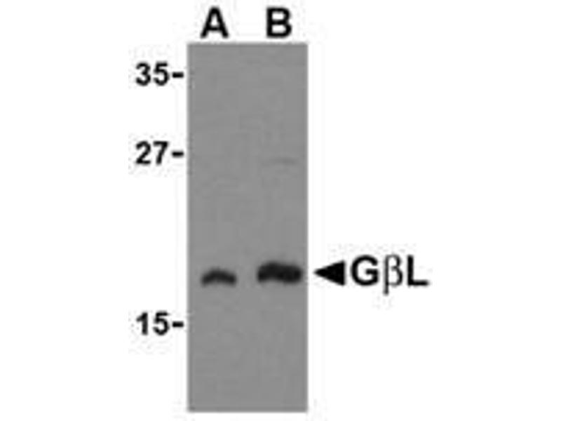 Western Blotting (WB) image for anti-MLST8 antibody (MTOR Associated Protein, LST8 Homolog (S. Cerevisiae)) (ABIN499879)