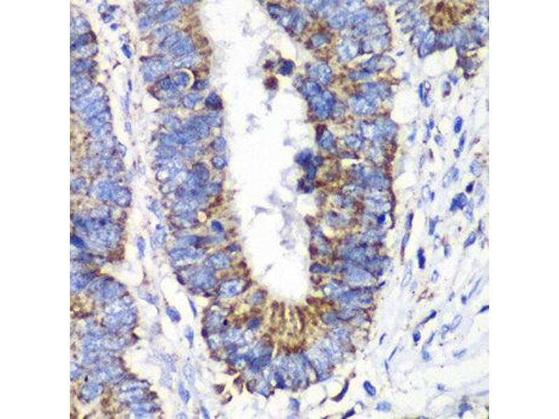 Immunohistochemistry (IHC) image for anti-V-Ral Simian Leukemia Viral Oncogene Homolog B (Ras Related, GTP Binding Protein) (Ralb) antibody (ABIN2564866)