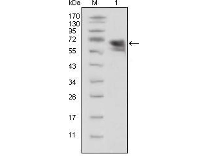 Western Blotting (WB) image for anti-Neurotrophic Tyrosine Kinase, Receptor, Type 1 (NTRK1) (AA 33-423) antibody (ABIN969444)