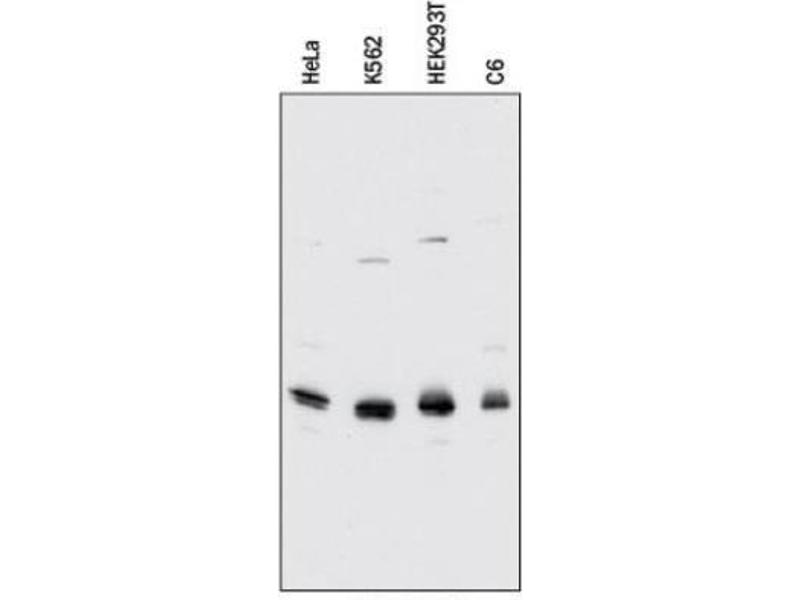 Western Blotting (WB) image for anti-CDK2 antibody (Cyclin-Dependent Kinase 2) (ABIN251166)